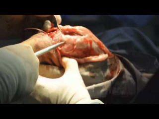Canine Cruciate Ligament Repair