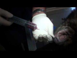 Drain,Inject, and Wrap Ear Hematoma