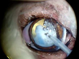 Cataract surgery using phacoemulsification followed by lens implant in a 10 year-old poodle (Sandy).