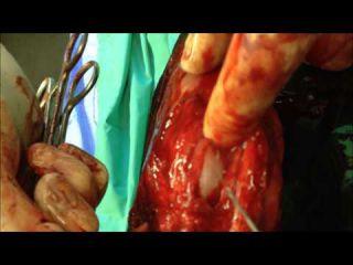 Cruciate Ligament Surgery (On a Dog)